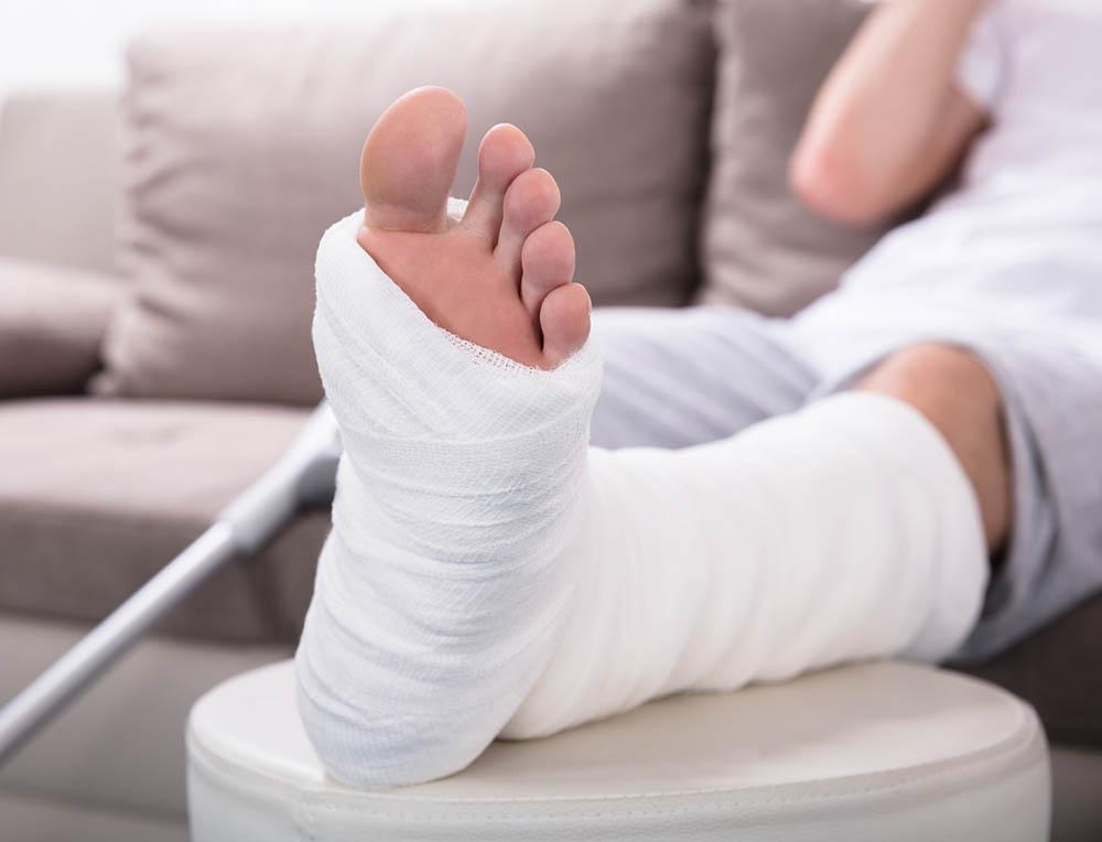 Broken Ankle in Cast