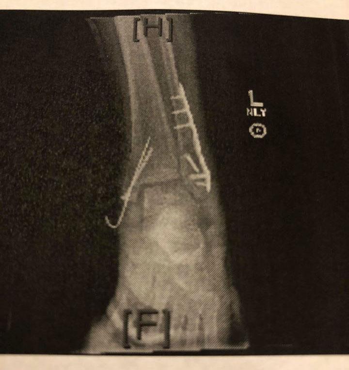 Sondi's Broken Ankle